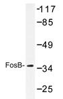 AP20229PU-N - FOSB