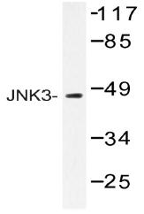 AP20387PU-N - MAPK8 / JNK1