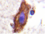 AP20219PU-N - CD115