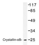 AP20218PU-N - Alpha-crystallin B chain / CRYA2