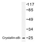 AP20217PU-N - Alpha-crystallin B chain / CRYA2