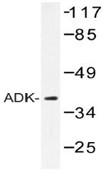 AP20391PU-N - Adenosine kinase