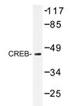 AP20216PU-N - CREB1