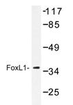 AP20436PU-N - FOXL1 / FKHL11
