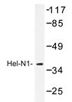 AP20434PU-N - ELAVL2 / HUB