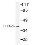 AP20422PU-N - GTF2A1 / TF2A1