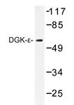 AP20421PU-N - DAG kinase epsilon