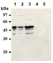 AM20285AF-N - Cyclin E1