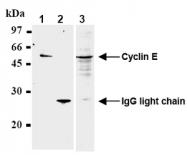 AM20286AF-N - Cyclin E1