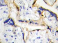 AP20419PU-N - Casein kinase I epsilon