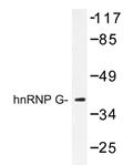 AP20416PU-N - RBMX / HNRPG