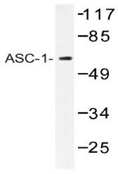 AP20395PU-N - ASC1 / TRIP4