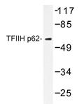 AP20413PU-N - GTF2H1 / BTF2