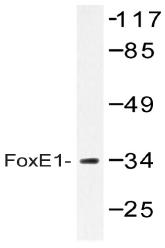 AP20398PU-N - FOXE1 / FKHL15