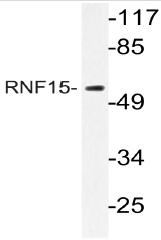 AP20399PU-N - TRIM38 / RNF15