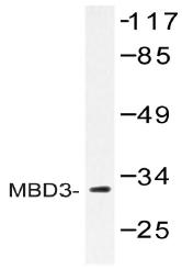AP20404PU-N - MBD3