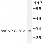 AP20405PU-N - hnRNP-C1/C2 / HNRNPC