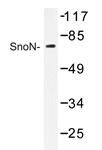 AP20409PU-N - SKIL / SnoN