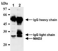 AM20288AF-N - MAD2L1