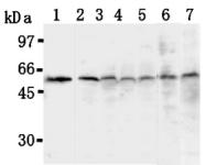 AM20295AF-N - TXNIP / VDUP1