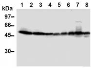 AM20296AF-N - TXNIP / VDUP1