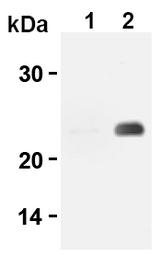 AM20299AF-N - CD3
