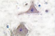 AP06142PU-N - mGluR7 / GRM7