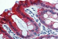 SM3043P - Cytokeratin 18