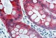 SM1360F - Cytokeratin 18