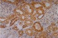 SM3043B - Cytokeratin 18