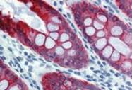 SM3044B - Cytokeratin 18