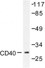 AP06445PU-N - CD40