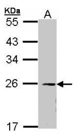 AP22368PU-N - EIF3K / EIF3S12