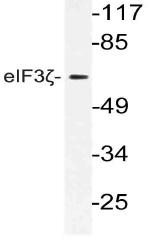 AP21173PU-N - EIF3D / EIF3S7