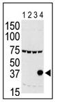 AP13519PU-N - Aurora kinase C