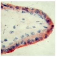 SM1813 - Apolipoprotein H / Apo H