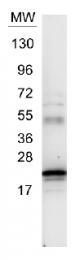 R1134 - Interleukin-6 / IL6