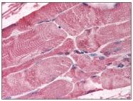 R1582 - BMI-1 / RNF51