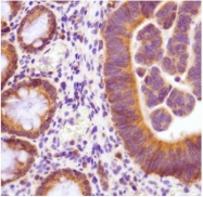 AM20302PU-N - Thymidylate synthase (TS)