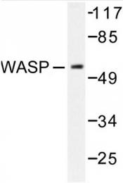 AP06593PU-N - WAS / IMD2