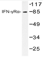 AP20248PU-N - CD119 / IFNGR1
