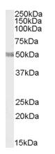 AP15946PU-T - Sphingosine kinase 1 (SPHK1)