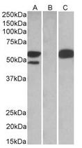 AP22453PU-N - SS-A / Ro52 / TRIM21