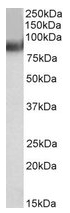 AP22452PU-N - TRIM55 / MURF2 / RNF29