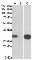 AP22415PU-N - Mid1-interacting protein 1