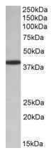 AP22435PU-N - PCBP1