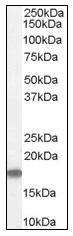AP16453PU-N - Stathmin / STMN1