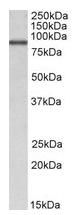 AP22382PU-N - ALDH18A1