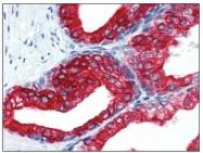 BM2275F - Cytokeratin 18