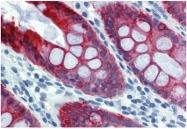 SM3044P - Cytokeratin 18